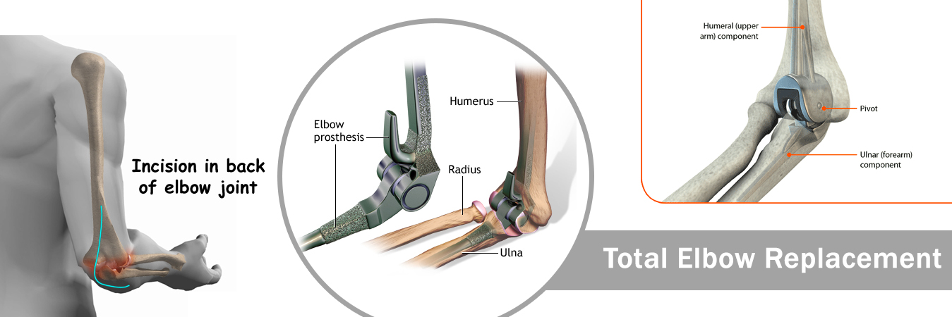 Total Elbow Replacement Surgery Jaipur