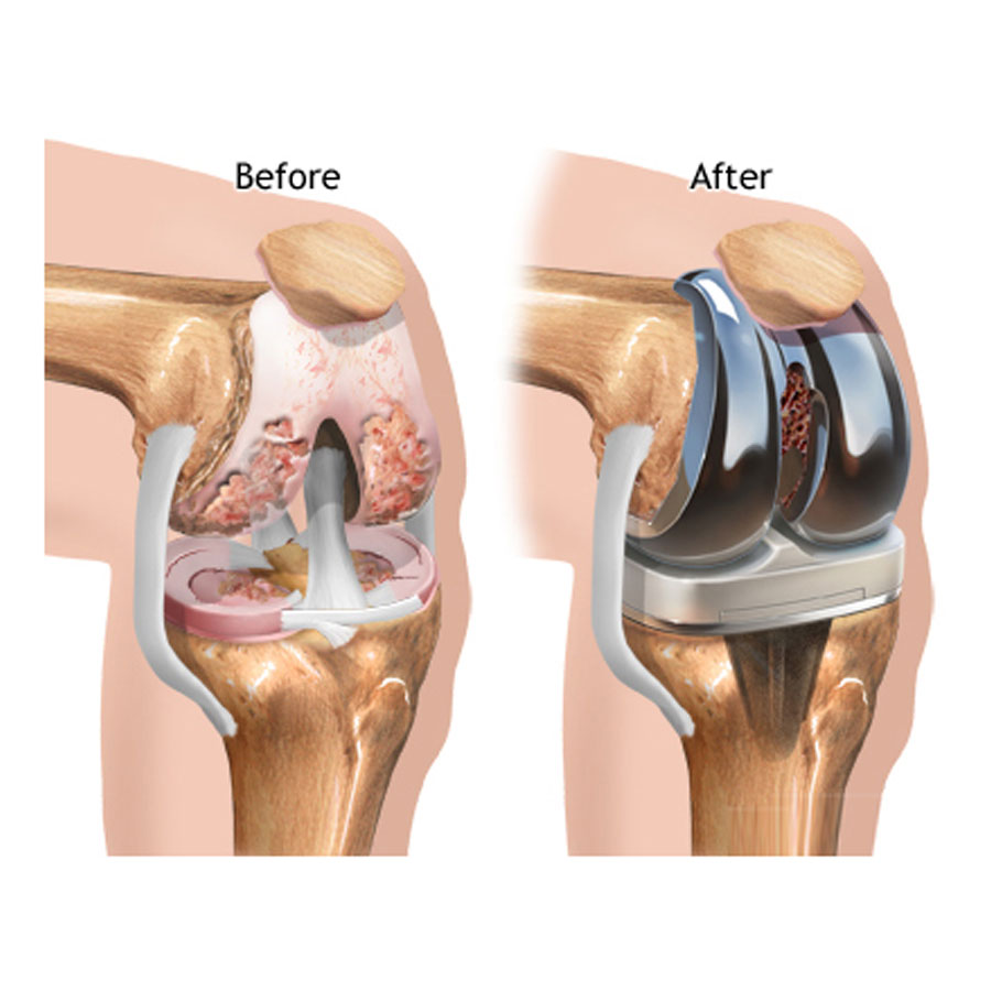 Hip Replacement Surgery In Jaipur