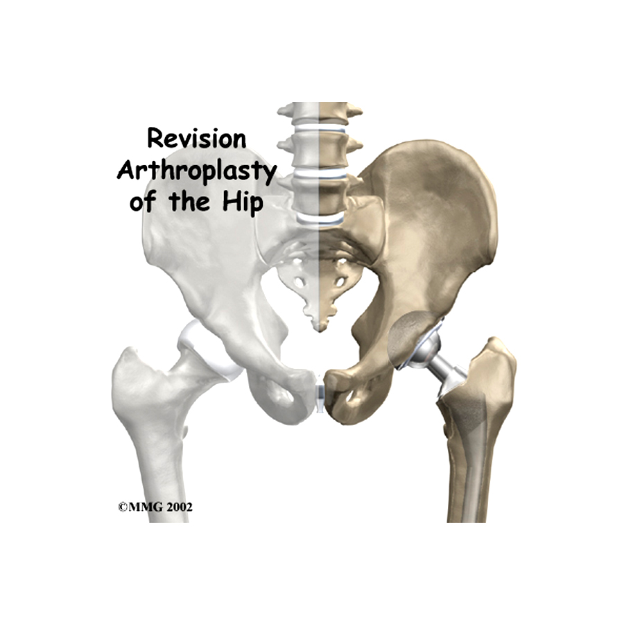 Revision Hip And Knee Replacement