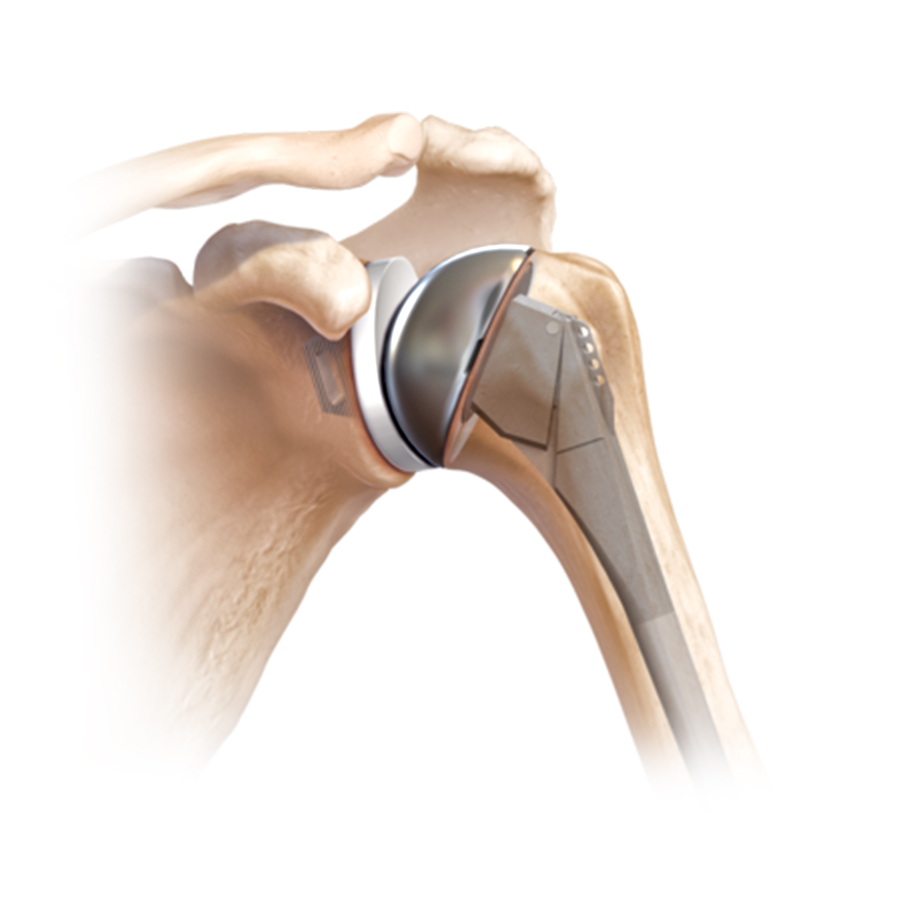 Total Shoulder Replacement In Jaipur
